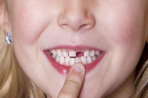 Mơ thấy rụng răng là điểm báo gì